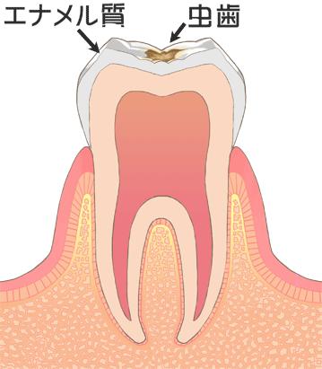 西尾市 歯医者 横須賀歯科診療所 虫歯