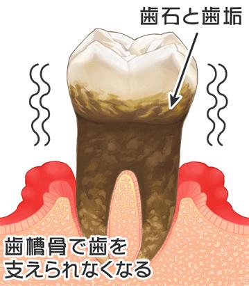 西尾市 歯医者 横須賀歯科診療所 歯周病