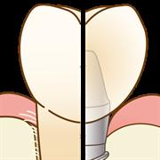 西尾市 歯医者 横須賀歯科診療所 インプラント